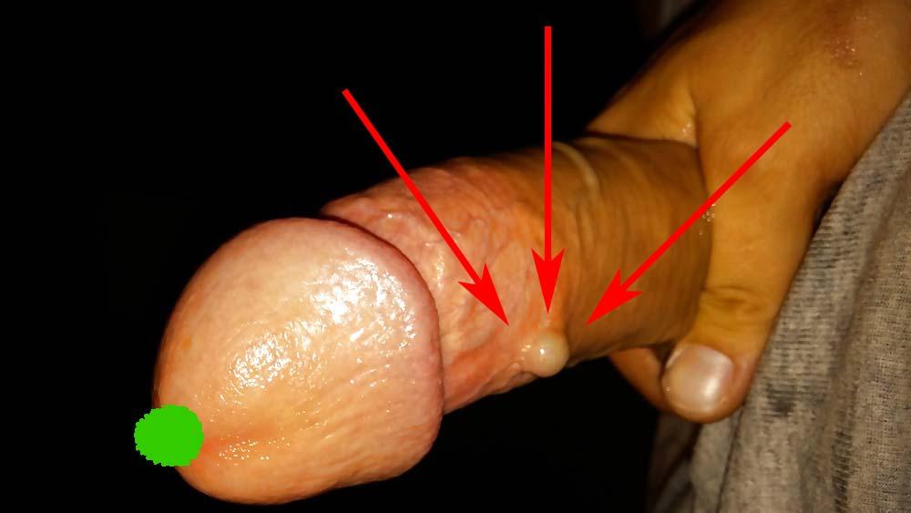 forme neobișnuite ale penisului