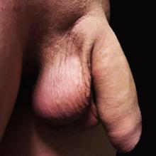 de ce este un penis moale cu erecție