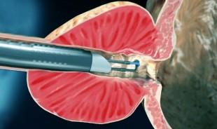 erecție după o intervenție chirurgicală de realocare a sexului agravează erecția