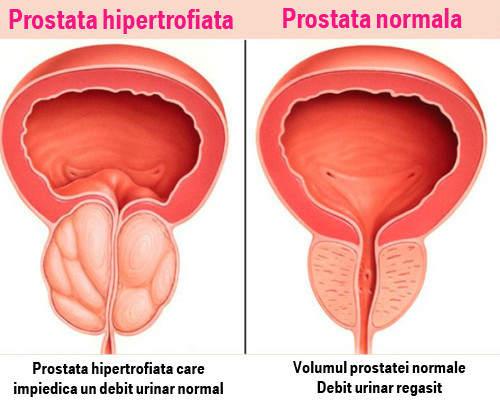 Erecție cu masaj de prostată - Masaj de prostata la domiciliu cu sotul ei: cum sa faci acasa