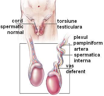 Torsiune testiculara