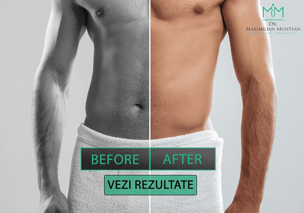înainte și după penis