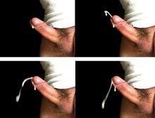 De ce o erecție devine strâmbă