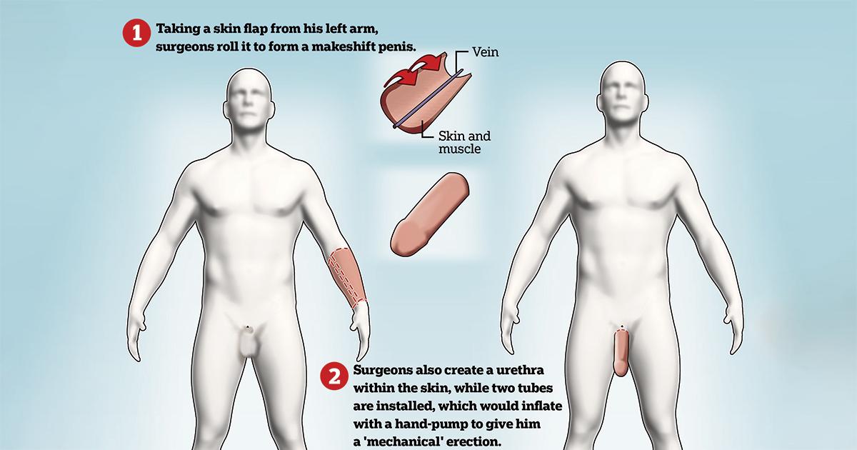 când este erect  penisul atârnă există cicatrici pe penis