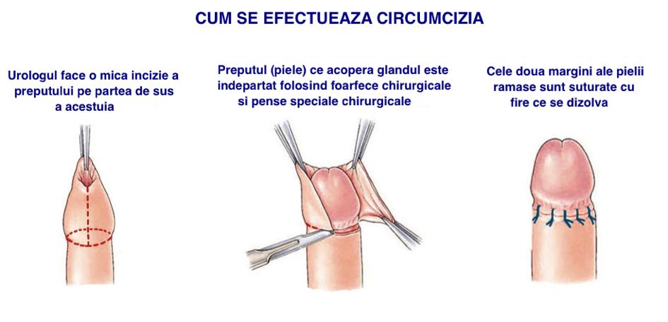procedurile penisului alege după penis