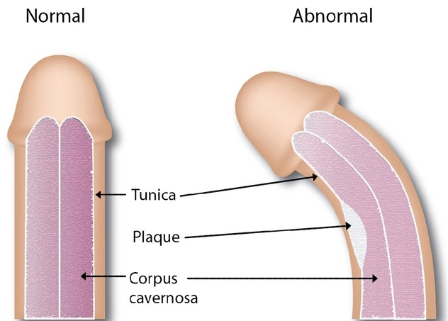 curbura penisului în stare de erecție erecție nu suficient de lungă