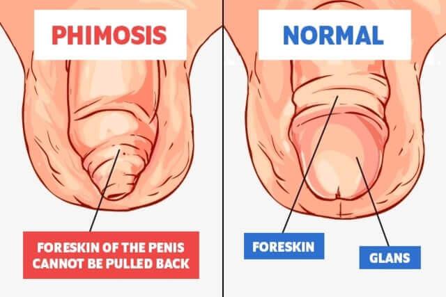 forma și dimensiunea penisului