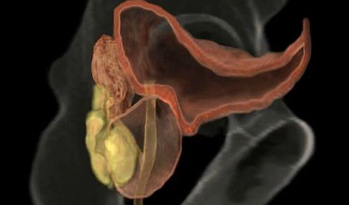 câți centimetri este dimensiunea medie a penisului atașament gonflabil al penisului