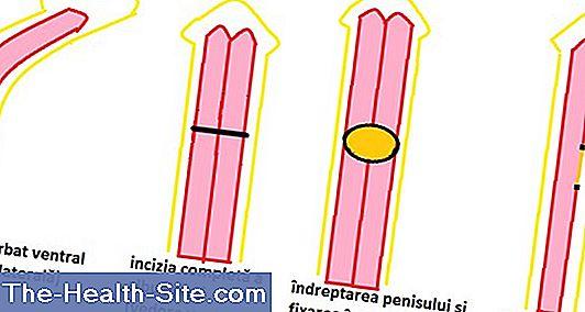 lungimea penisului este normală