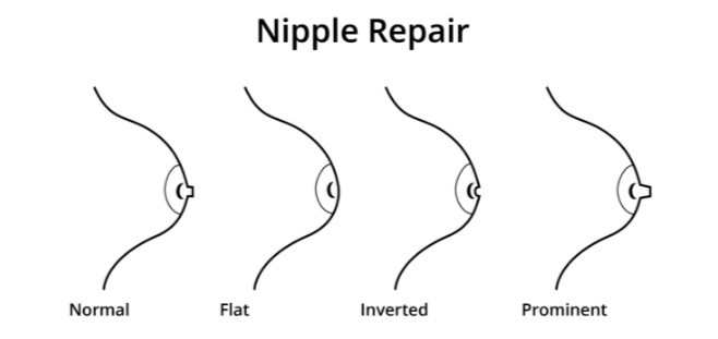 mamelonul penisului